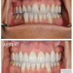 cosmetic-dentists-in-calgary